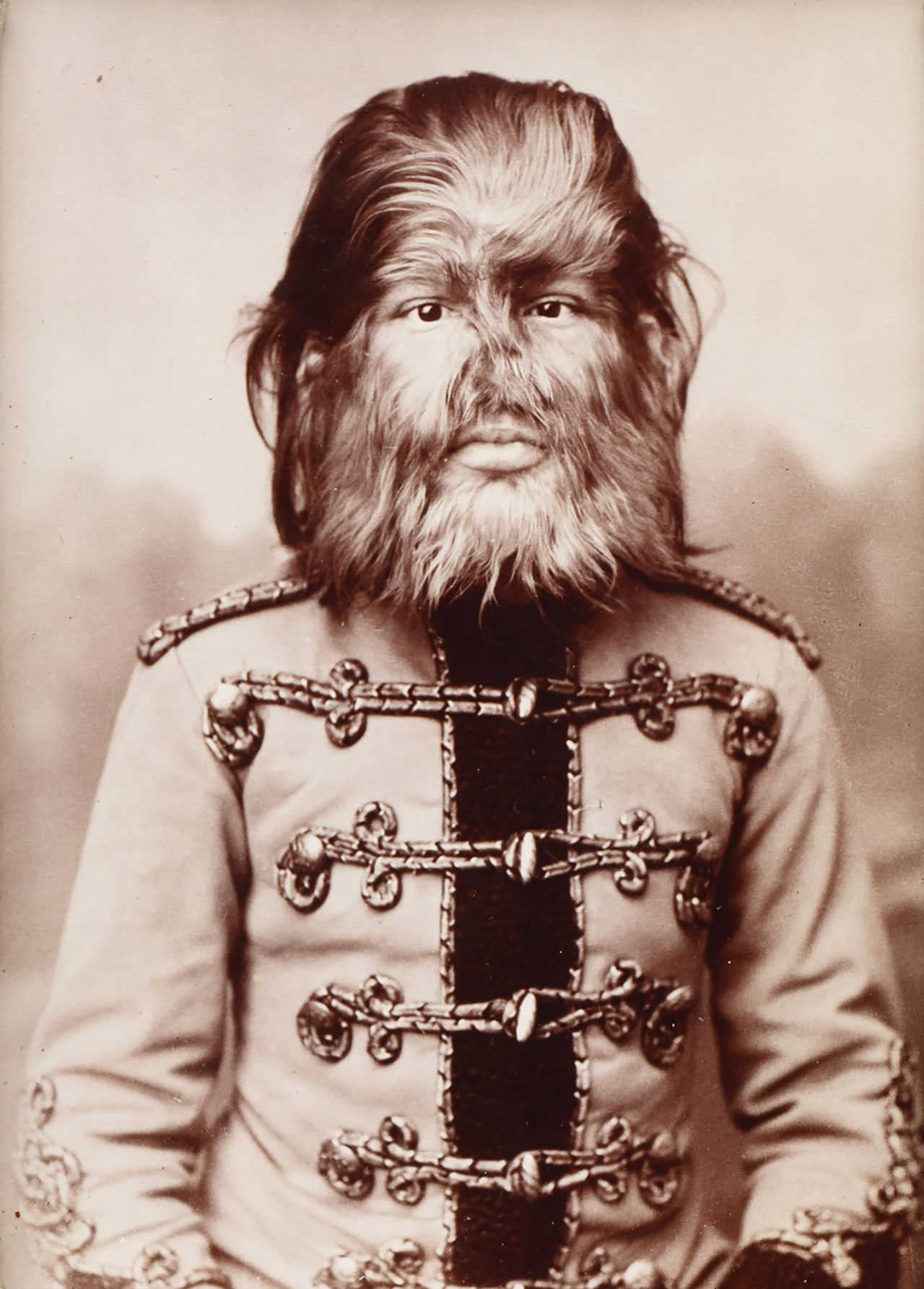「JOJO: The Russian Dog Face Boy」(1884) Photo by Keizo Kioku, ©︎Charles Eisenmann Courtesy of Gallery Naruyama
